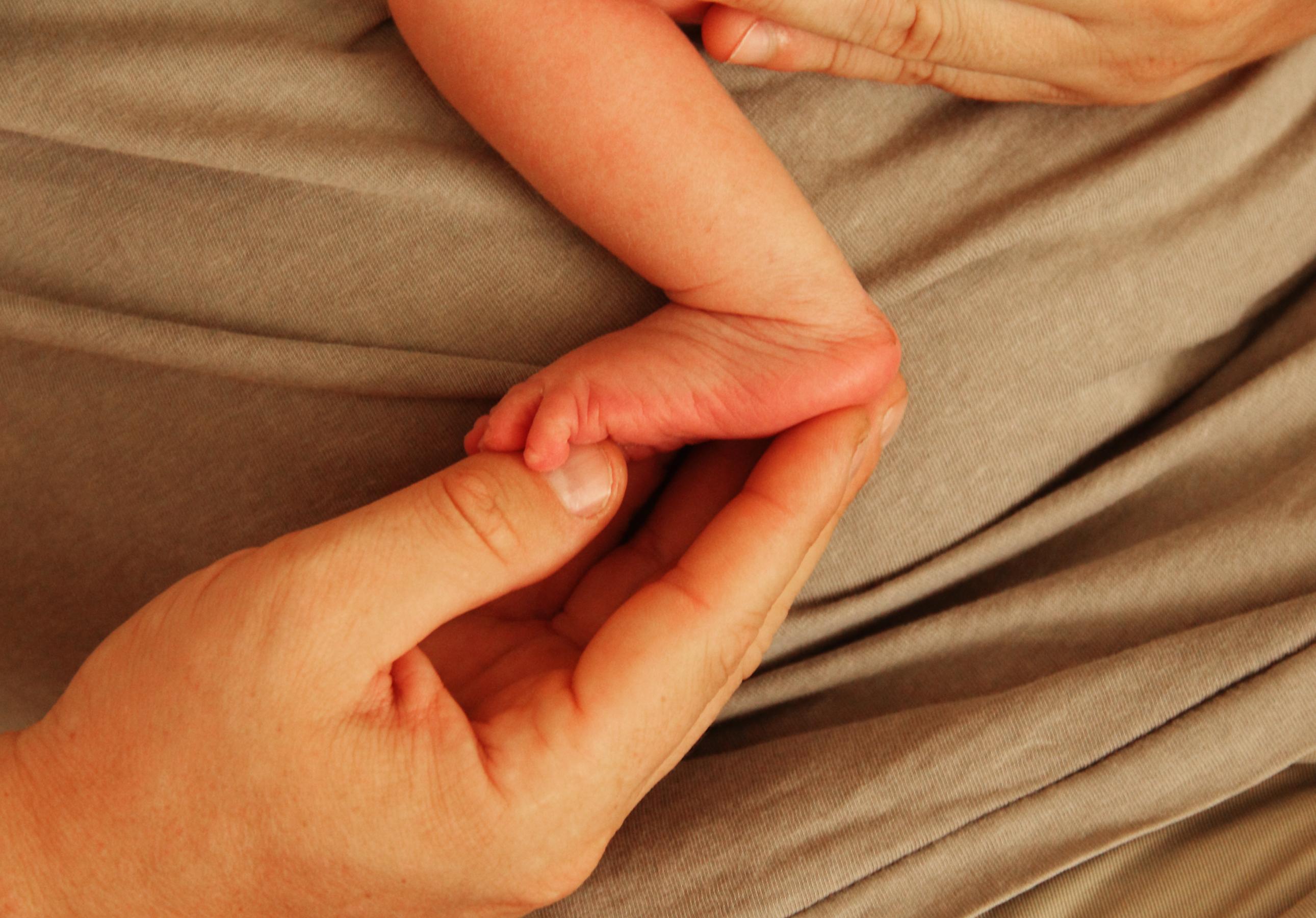 Несимметричные складочки на ножках у ребенка фото