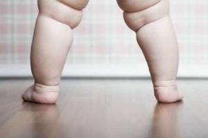 baby-child-obesity